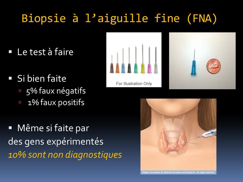Biopsie à l'aiguille fine (FNA)