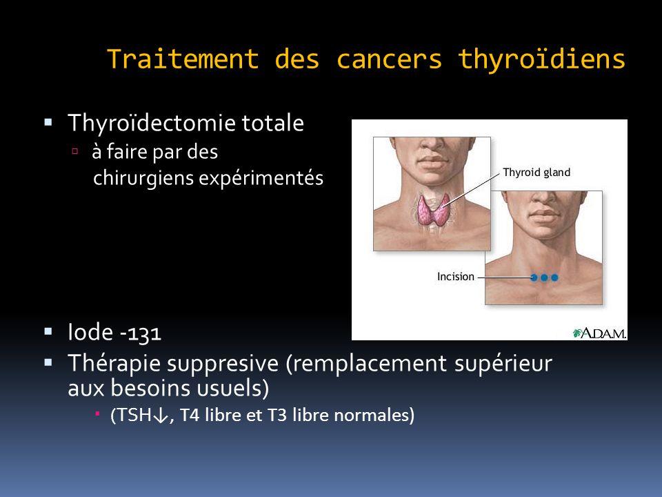 Traitement des cancers thyroïdiens