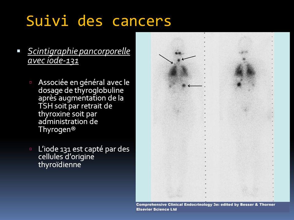 Suivi des cancers Scintigraphie pancorporelle avec iode-131