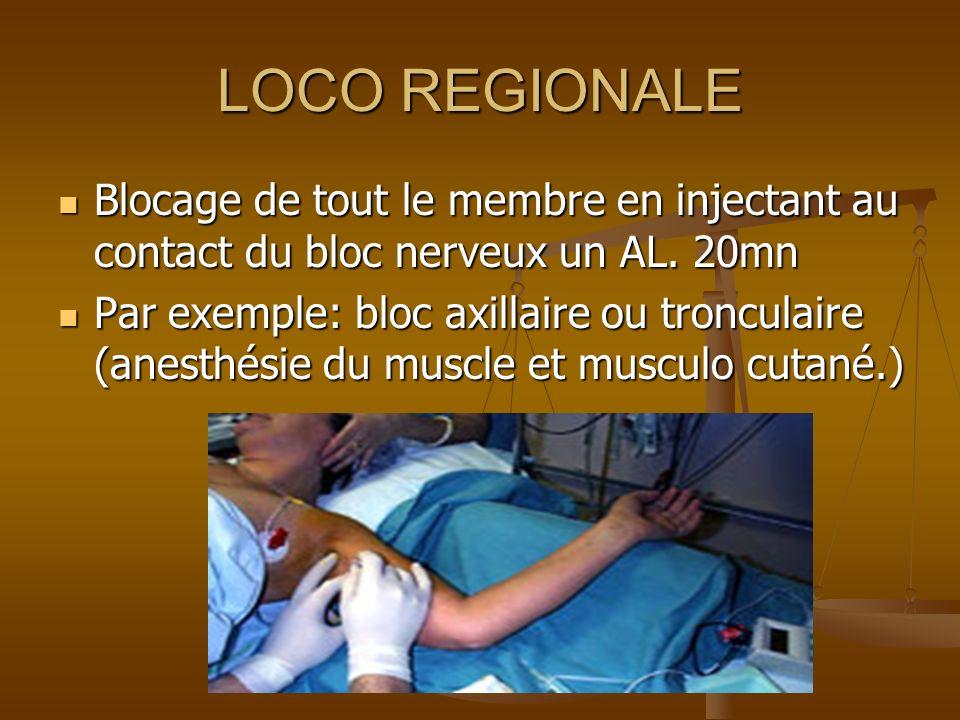 LOCO REGIONALE Blocage de tout le membre en injectant au contact du bloc nerveux un AL. 20mn.