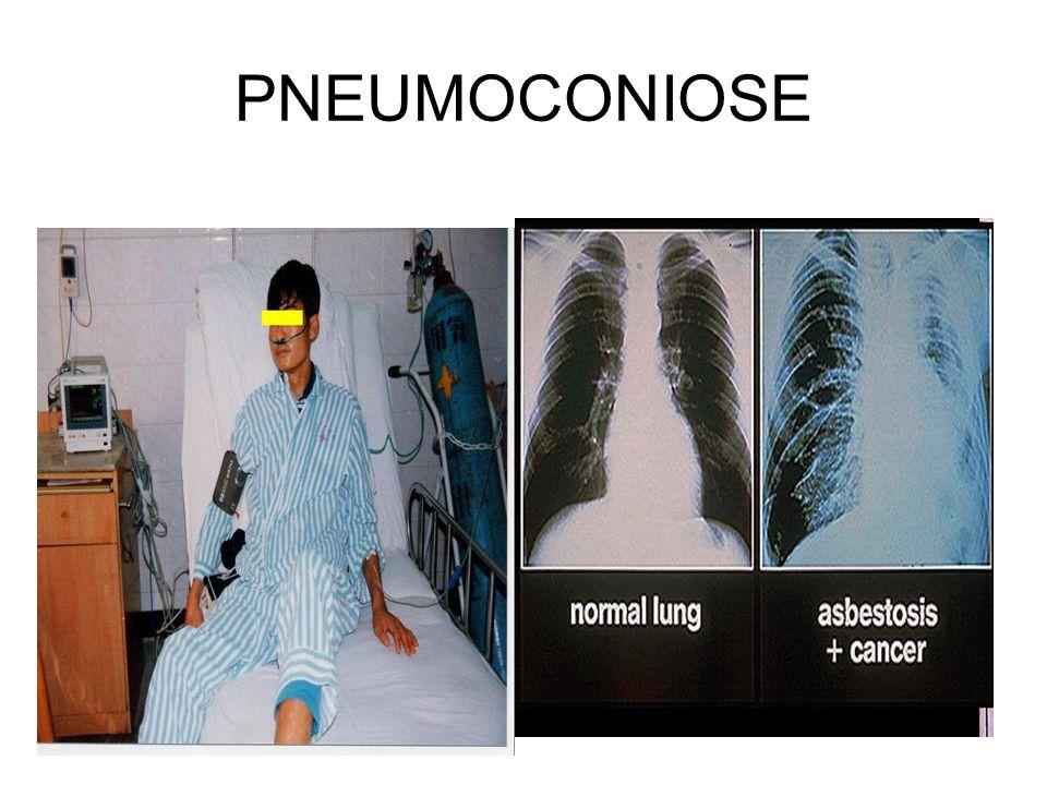 PNEUMOCONIOSE Poumon normal Amiantose + cancer