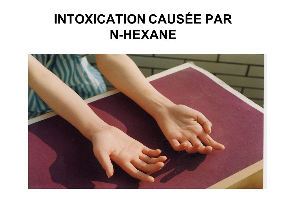 INTOXICATION CAUSÉE PAR N-HEXANE