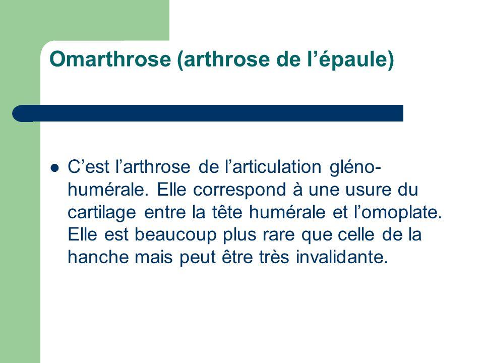 Omarthrose (arthrose de l'épaule)