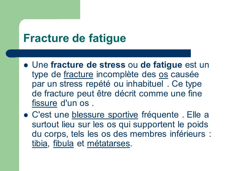 Fracture de fatigue