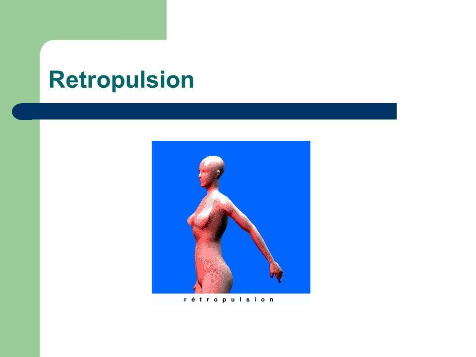 Retropulsion