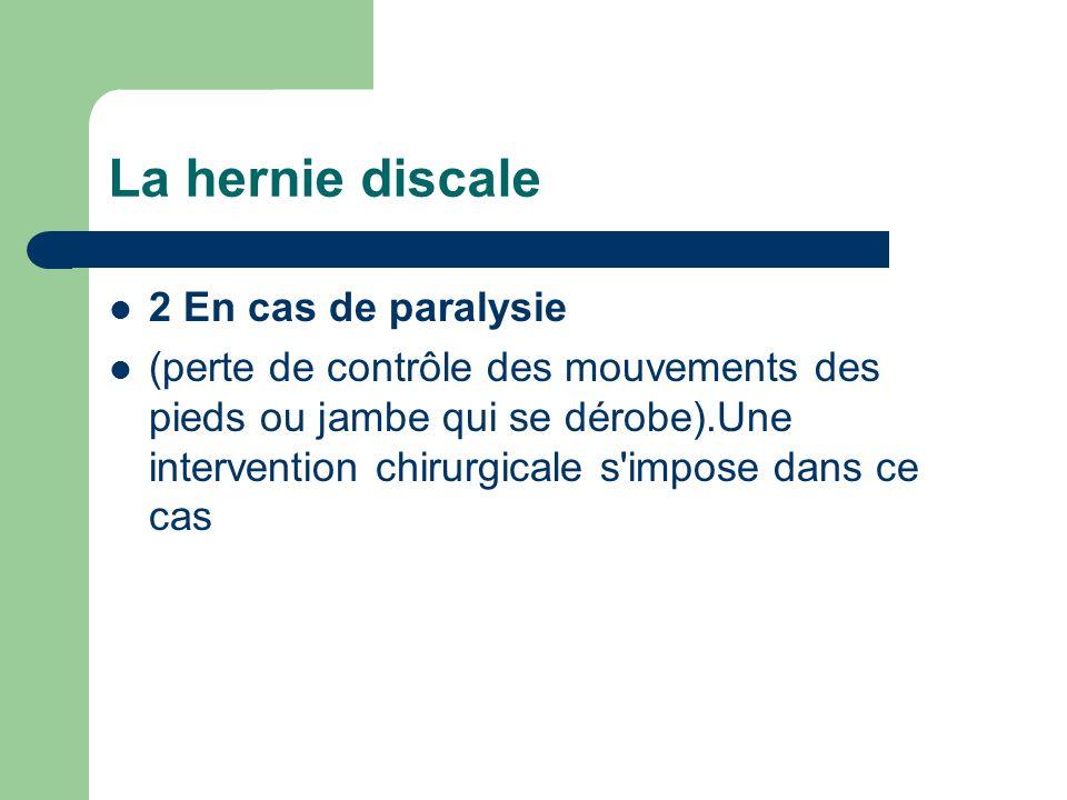 La hernie discale 2 En cas de paralysie