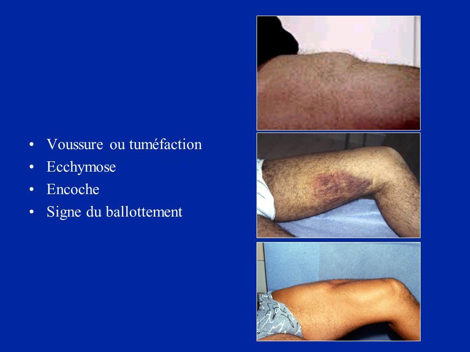 Voussure ou tuméfaction