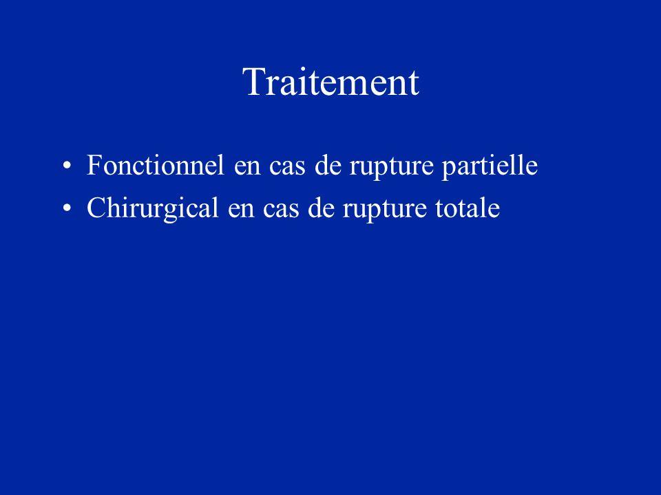 Traitement Fonctionnel en cas de rupture partielle