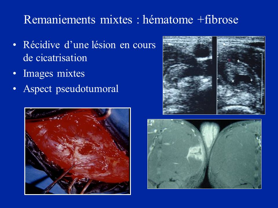 Remaniements mixtes : hématome +fibrose