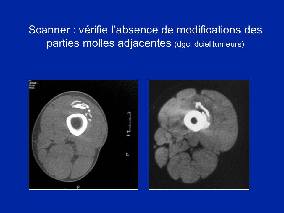 Scanner : vérifie l'absence de modifications des parties molles adjacentes (dgc dciel tumeurs)