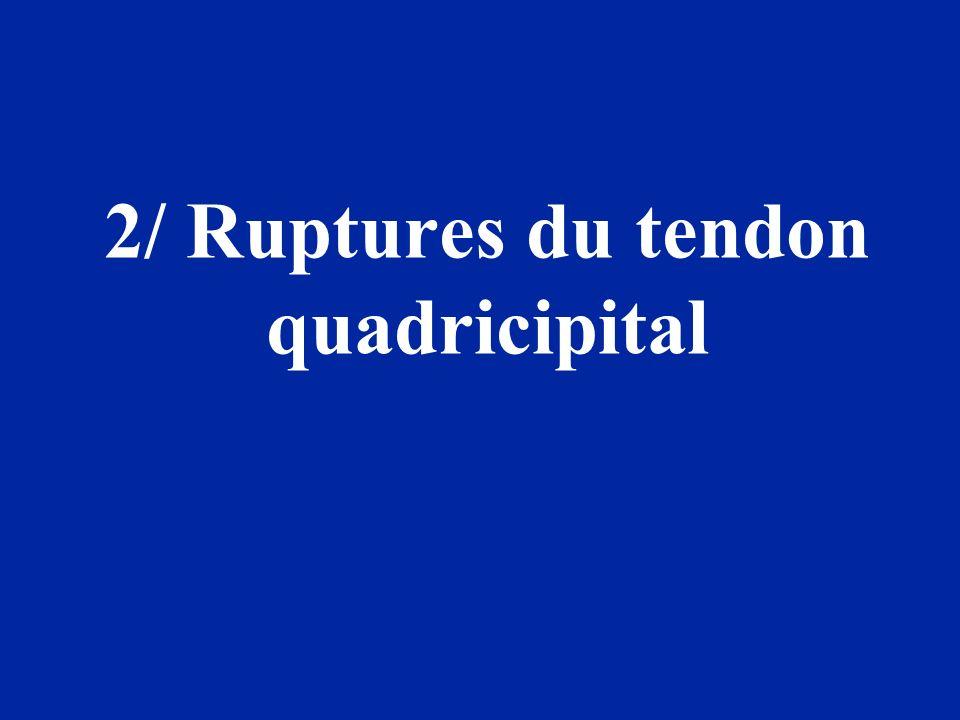 2/ Ruptures du tendon quadricipital