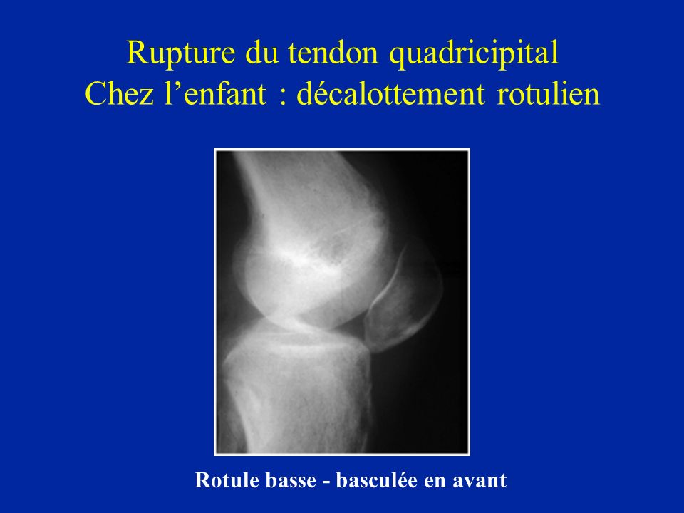 Rupture du tendon quadricipital Chez l'enfant : décalottement rotulien