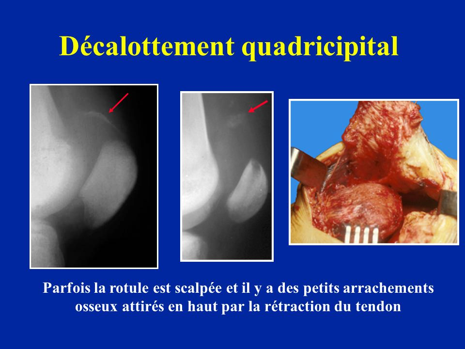 Décalottement quadricipital