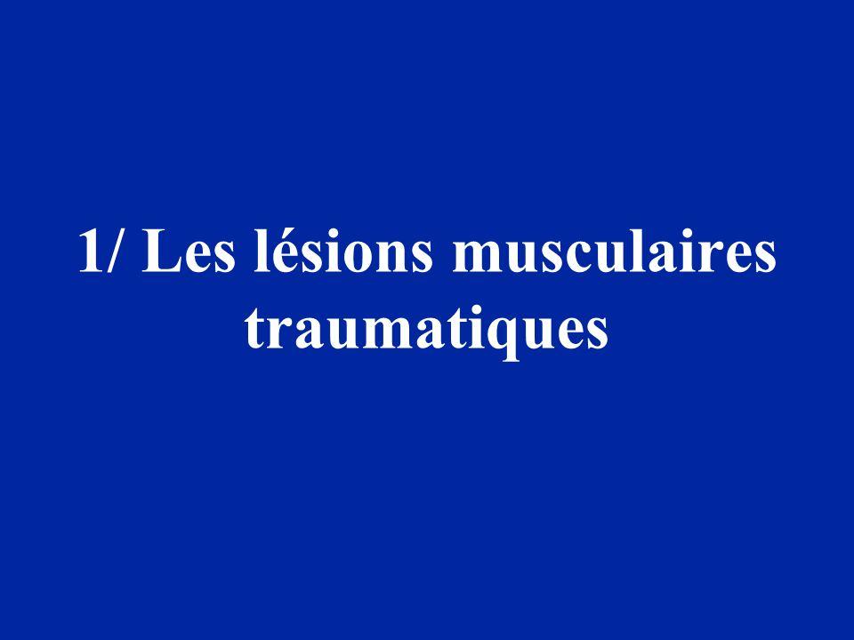 1/ Les lésions musculaires traumatiques