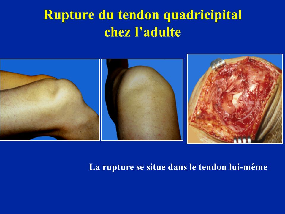 Rupture du tendon quadricipital chez l'adulte