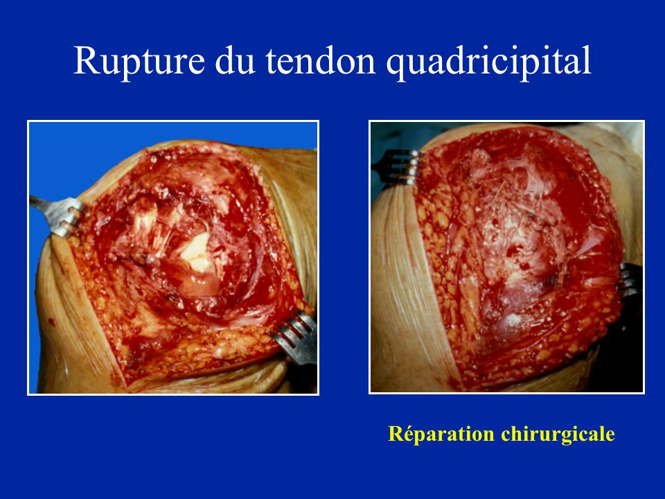 Rupture du tendon quadricipital