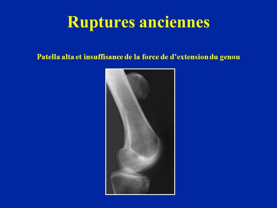 Ruptures anciennes Patella alta et insuffisance de la force de d'extension du genou