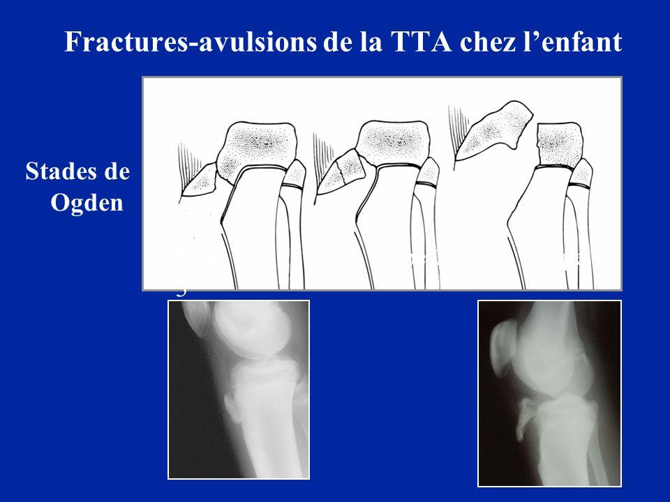 Fractures-avulsions de la TTA chez l'enfant