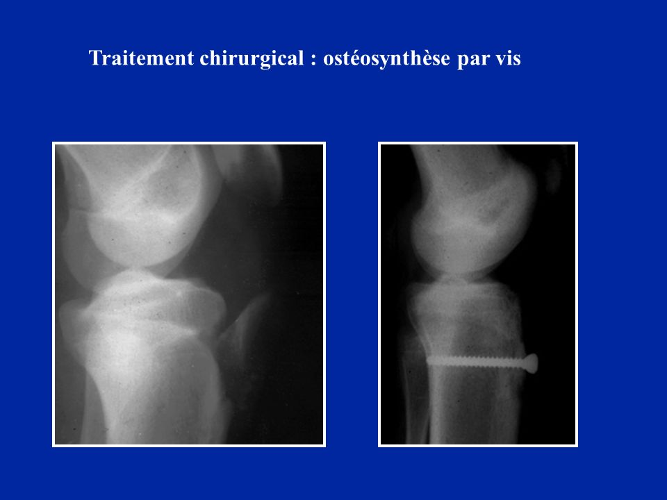 Traitement chirurgical : ostéosynthèse par vis