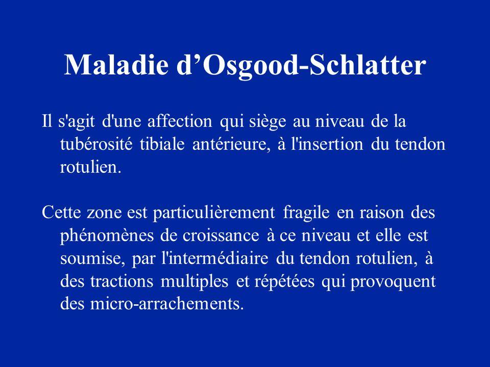 Maladie d'Osgood-Schlatter