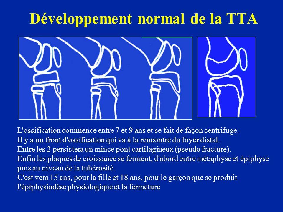 Développement normal de la TTA