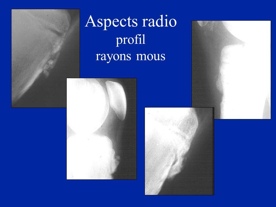 Aspects radio profil rayons mous