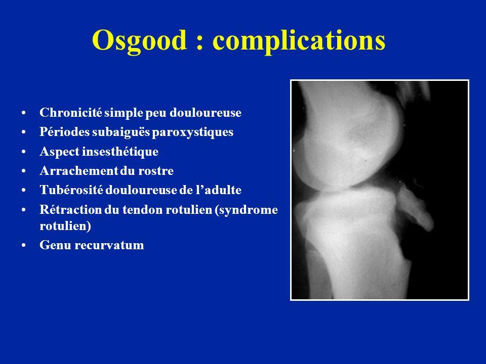 Osgood : complications