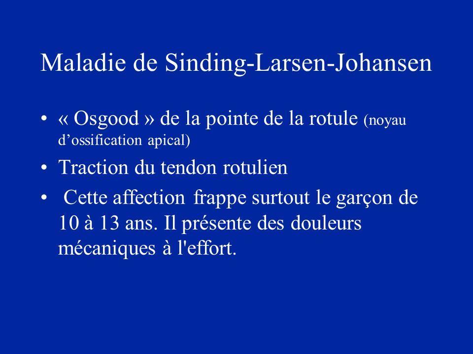 Maladie de Sinding-Larsen-Johansen