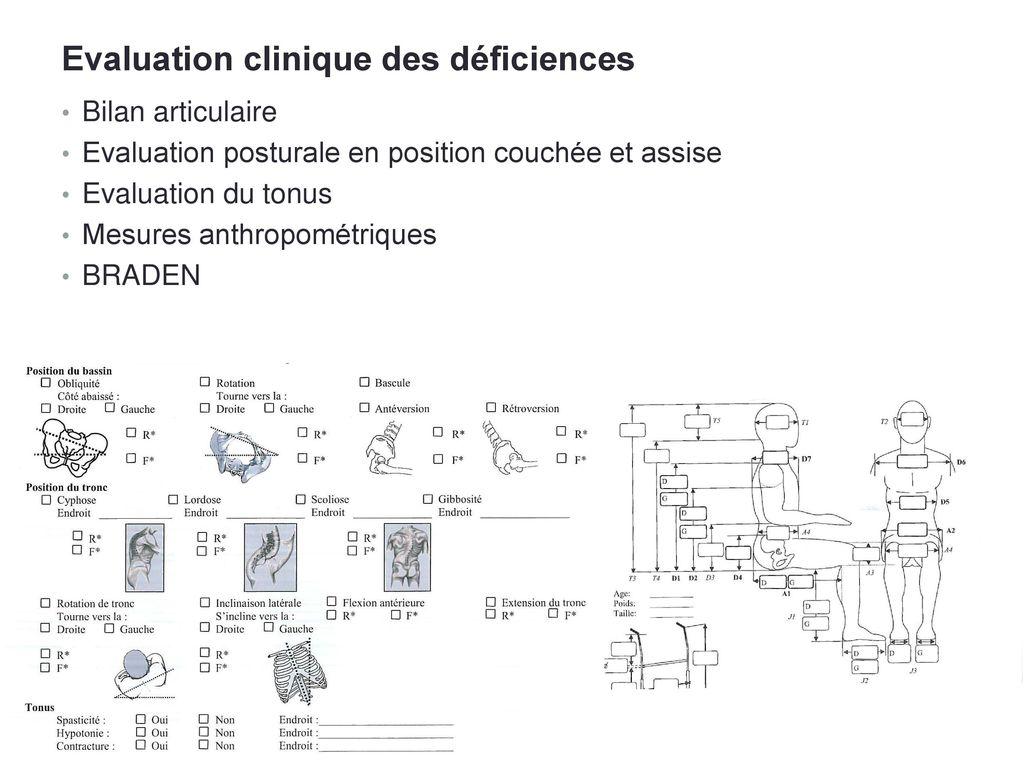 Edouard faure ergoth rapeute 24 septembre ppt video online - Causes des vertiges en position couchee ...
