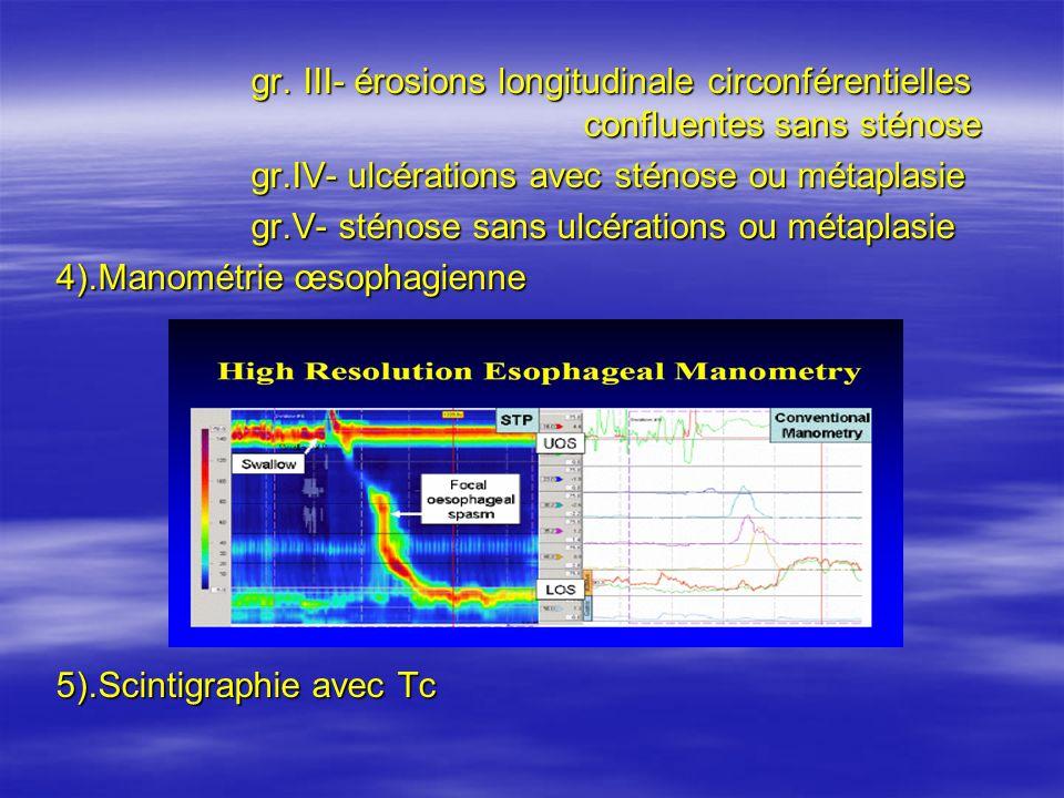 gr. III- érosions longitudinale circonférentielles