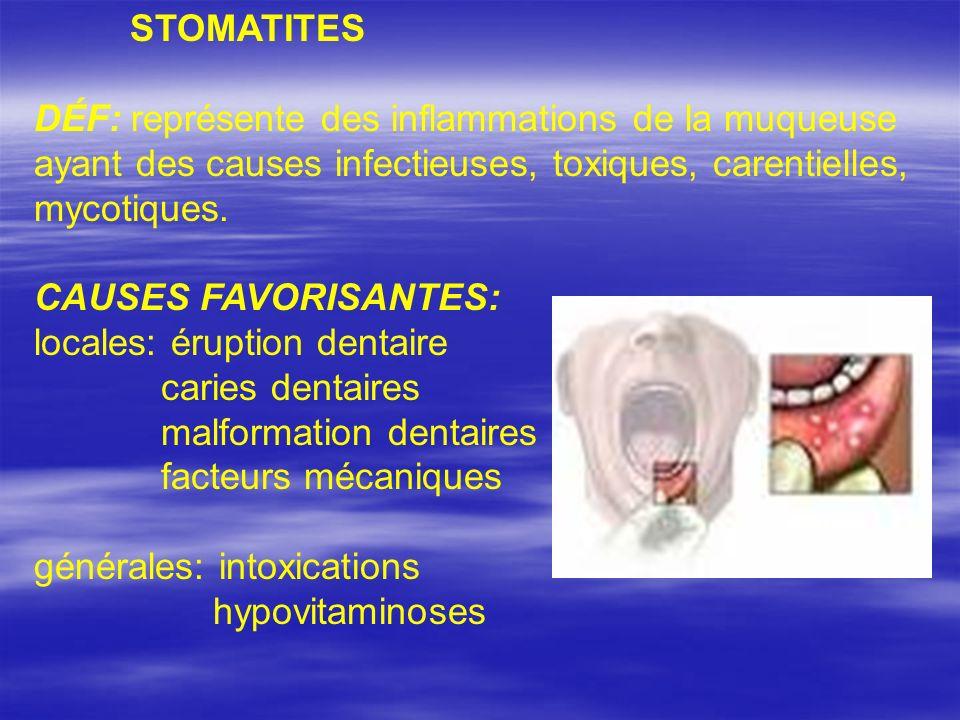 STOMATITES DÉF: représente des inflammations de la muqueuse ayant des causes infectieuses, toxiques, carentielles, mycotiques.