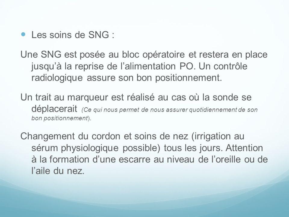 Les soins de SNG :