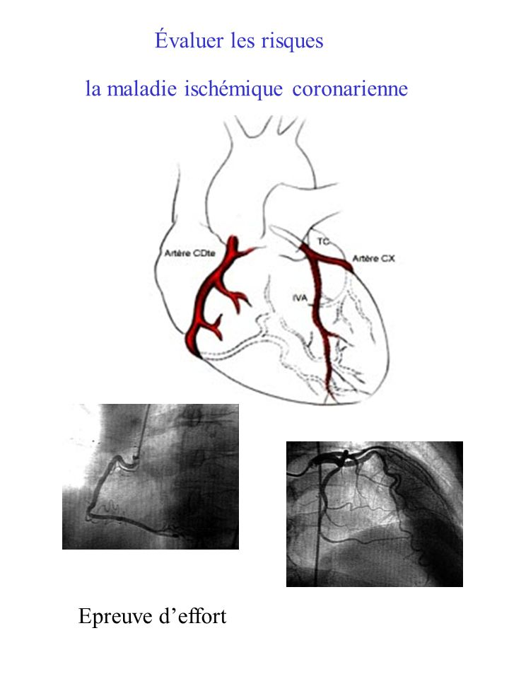 Évaluer les risques la maladie ischémique coronarienne Epreuve d'effort