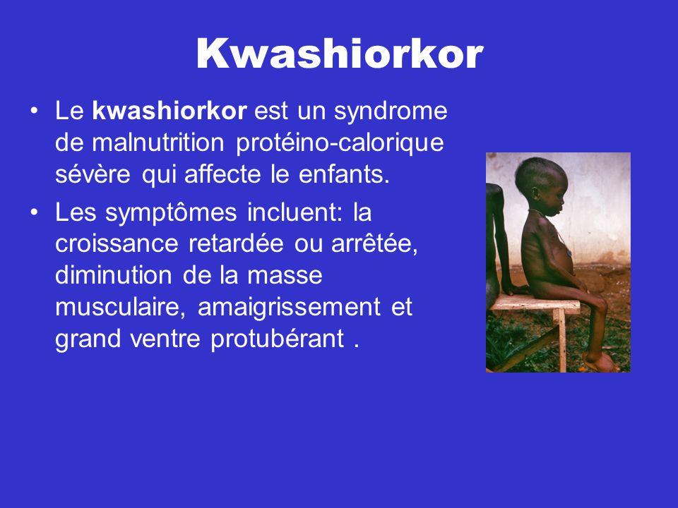Kwashiorkor Le kwashiorkor est un syndrome de malnutrition protéino-calorique sévère qui affecte le enfants.