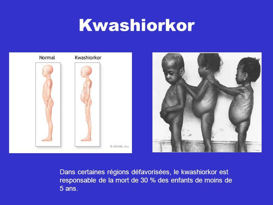 Kwashiorkor Dans certaines régions défavorisées, le kwashiorkor est responsable de la mort de 30 % des enfants de moins de 5 ans.