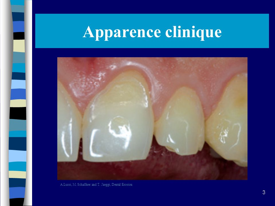 Apparence clinique A.Lussi, M. Schaffner and T. Jaeggi, Dental Erosion