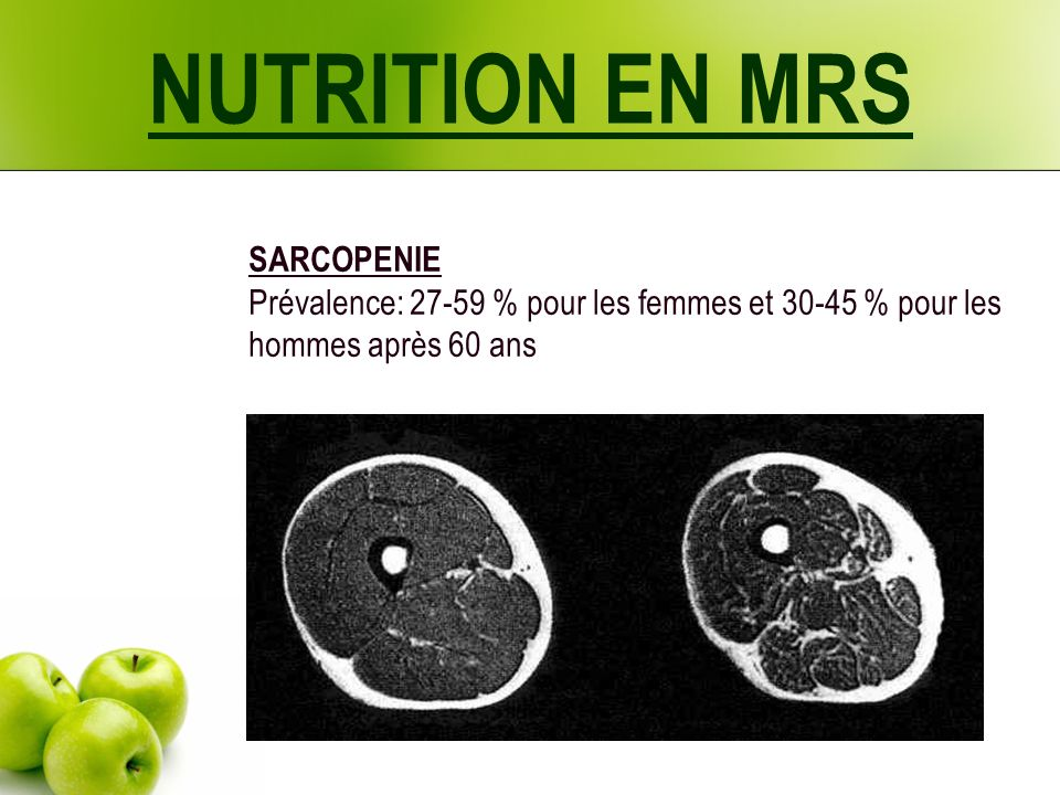 NUTRITION EN MRS SARCOPENIE Prévalence: 27-59 % pour les femmes et 30-45 % pour les hommes après 60 ans.