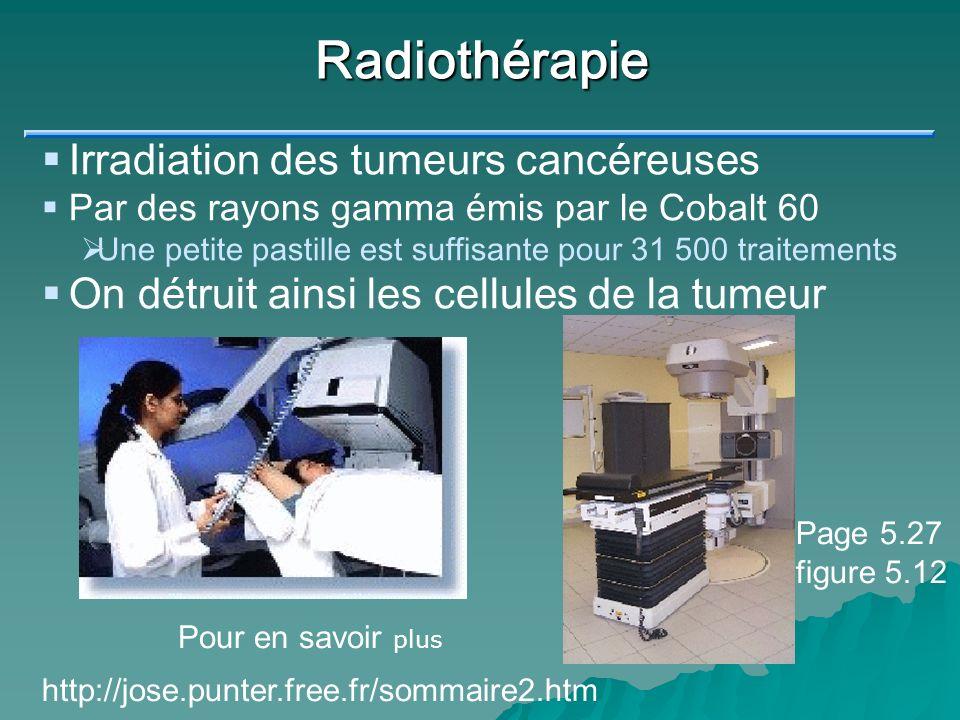 Radiothérapie Irradiation des tumeurs cancéreuses
