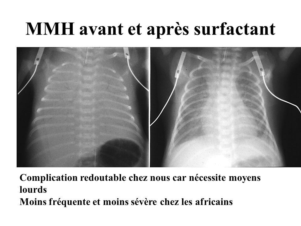 MMH avant et après surfactant