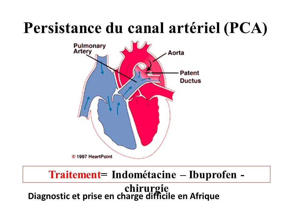 Persistance du canal artériel (PCA)