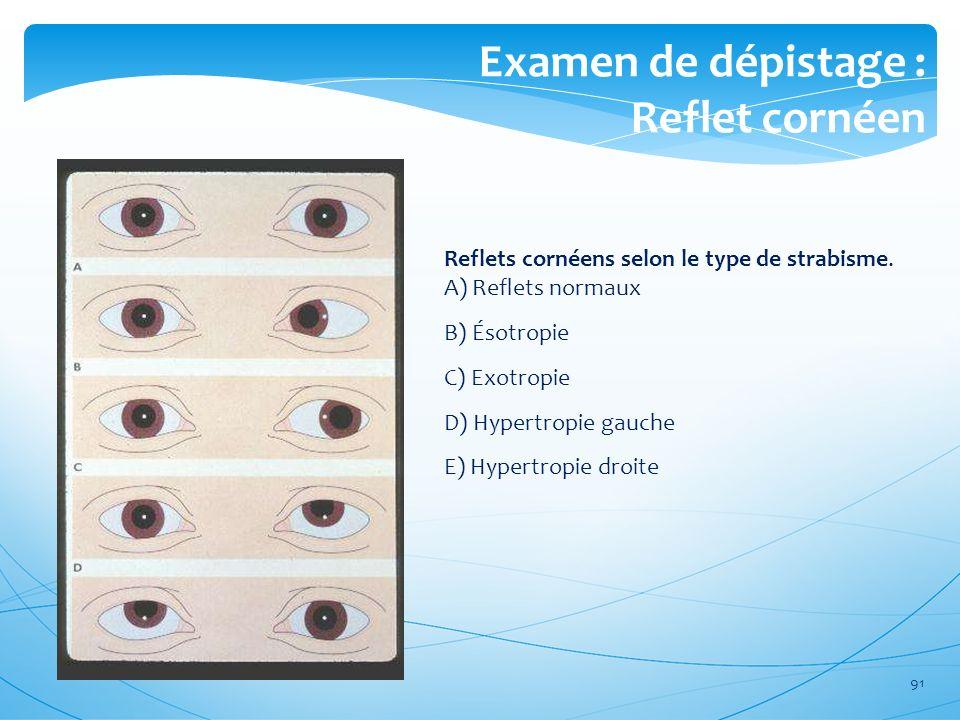 Examen de dépistage : Reflet cornéen