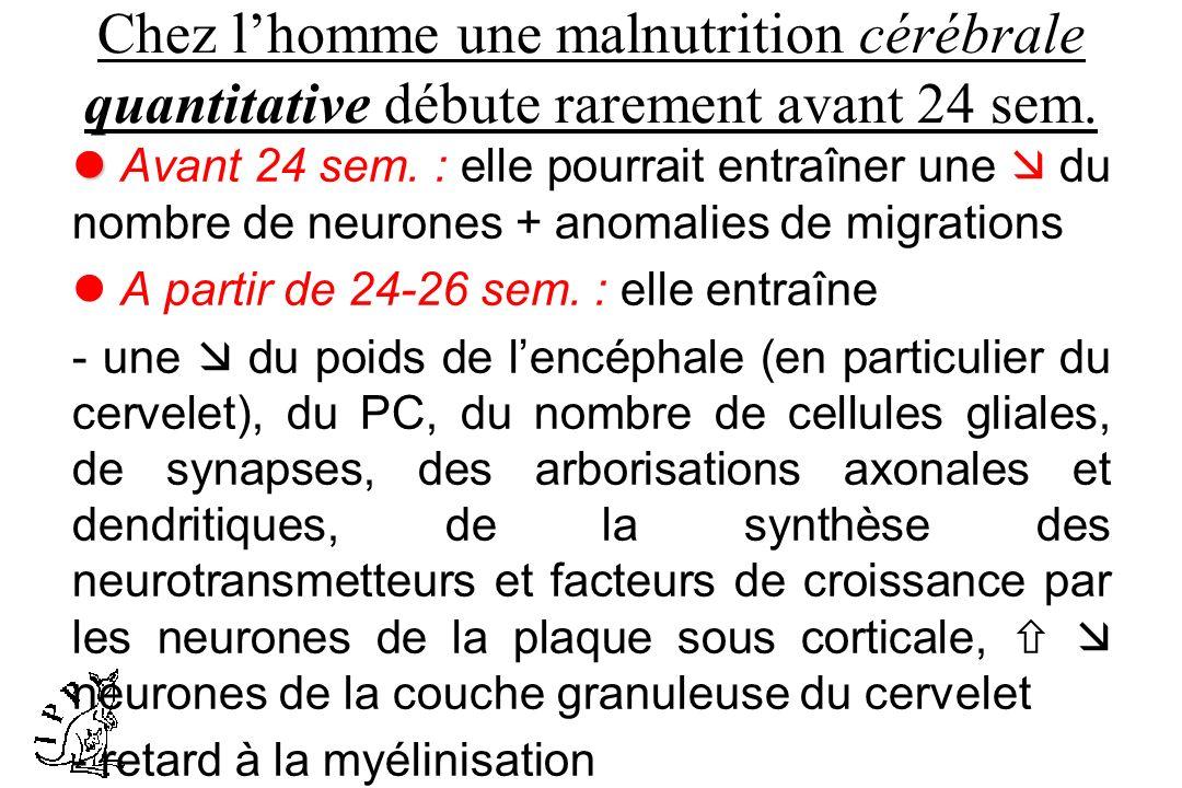 Chez l'homme une malnutrition cérébrale quantitative débute rarement avant 24 sem.