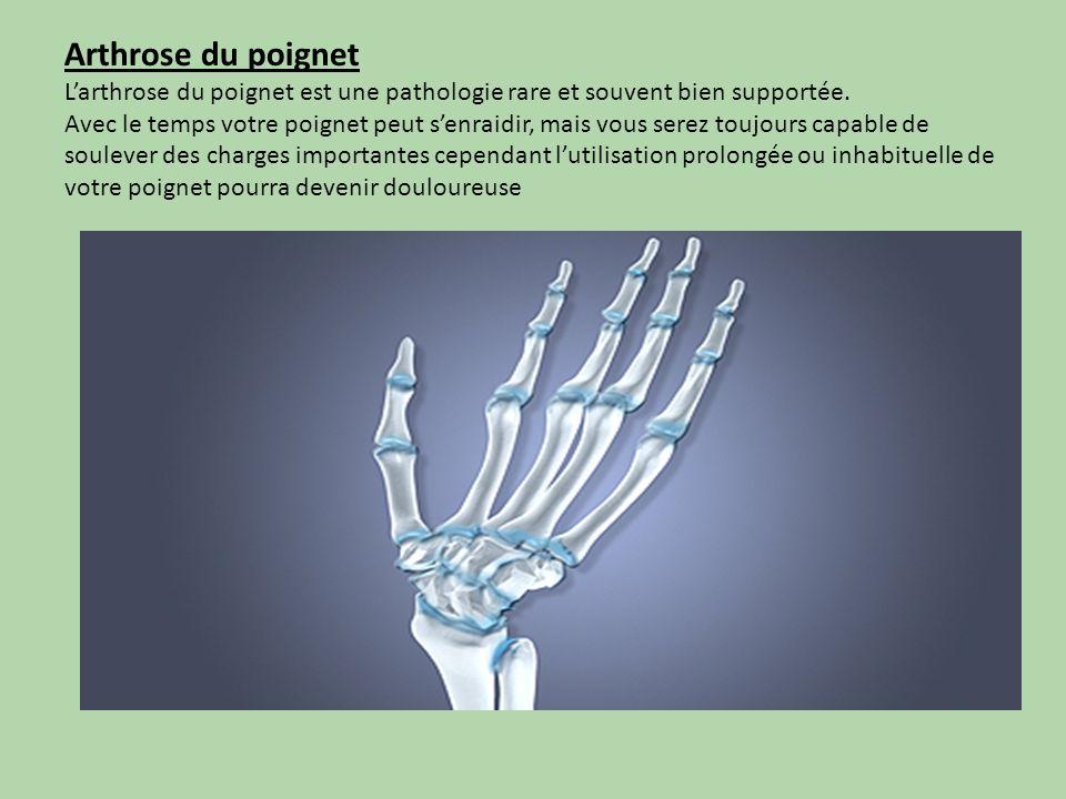 Arthrose du poignet
