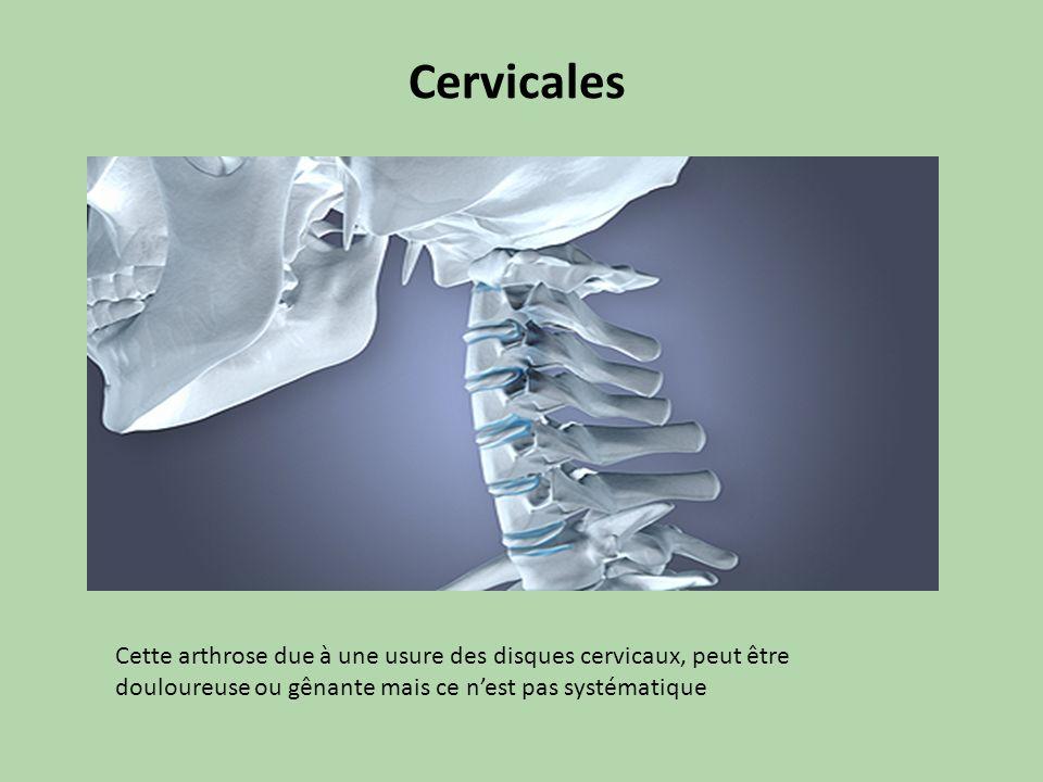 Cervicales Cette arthrose due à une usure des disques cervicaux, peut être douloureuse ou gênante mais ce n'est pas systématique.