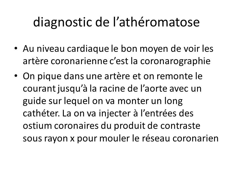 diagnostic de l'athéromatose