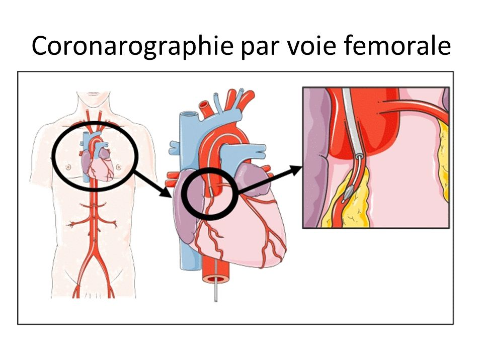 Coronarographie par voie femorale