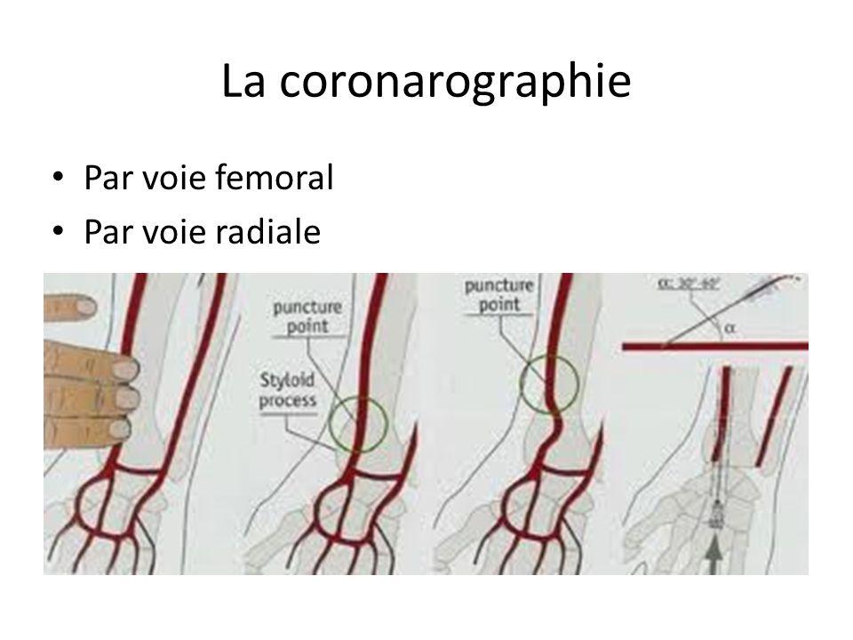 La coronarographie Par voie femoral Par voie radiale