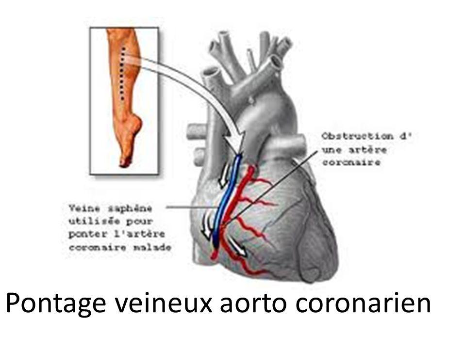 Pontage veineux aorto coronarien