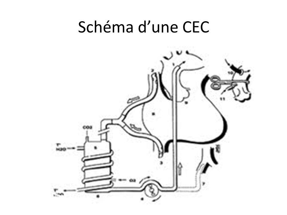 Schéma d'une CEC