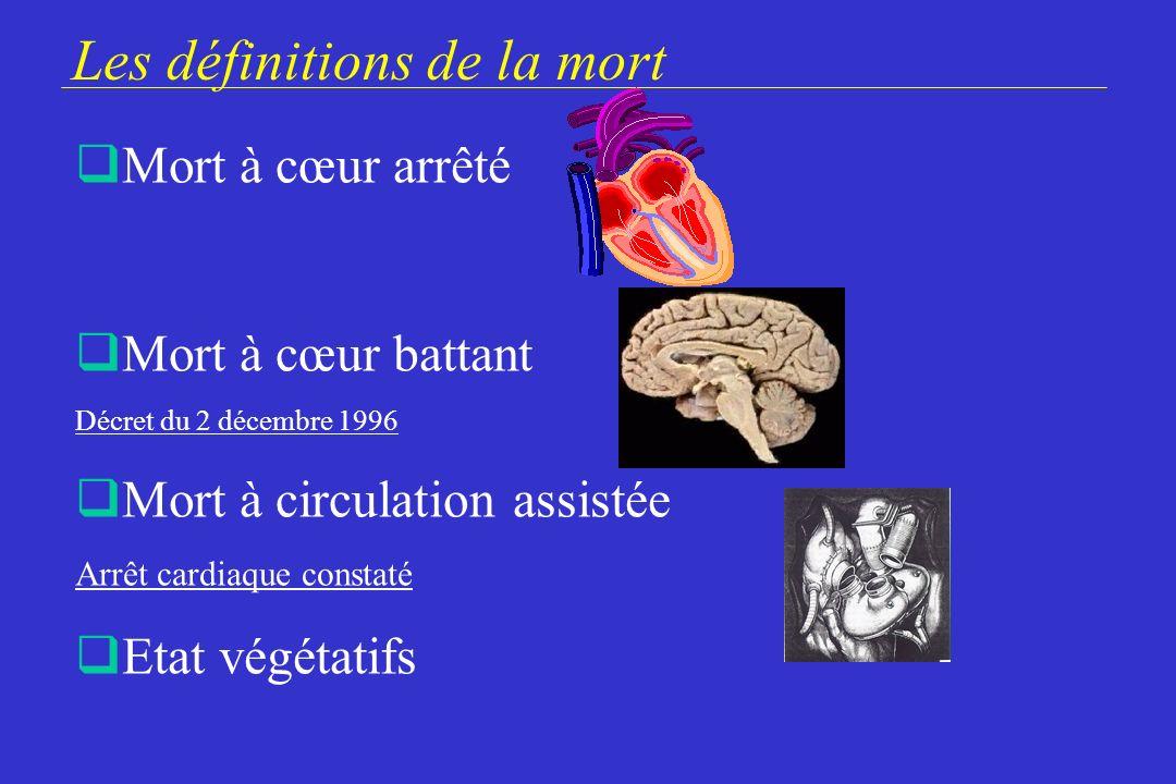 Les définitions de la mort
